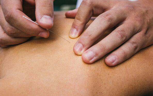 ClientRecevingAcupunctureServices1 1